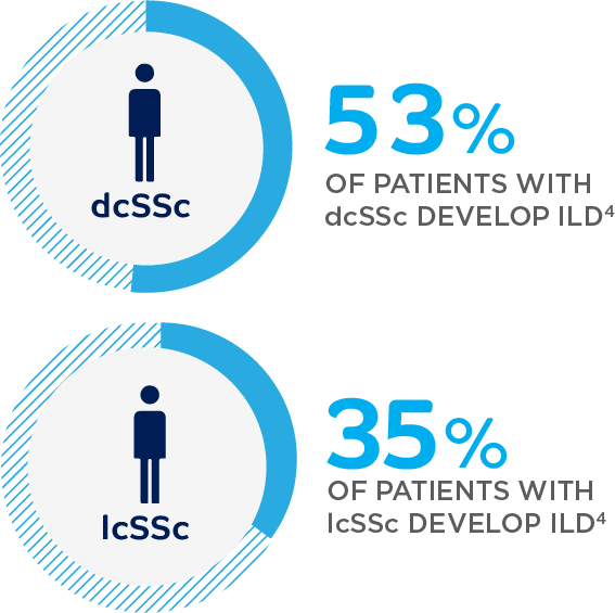 53% of patients with dcSSc develop ILD; 35% of patients with lcSSc develop ILD