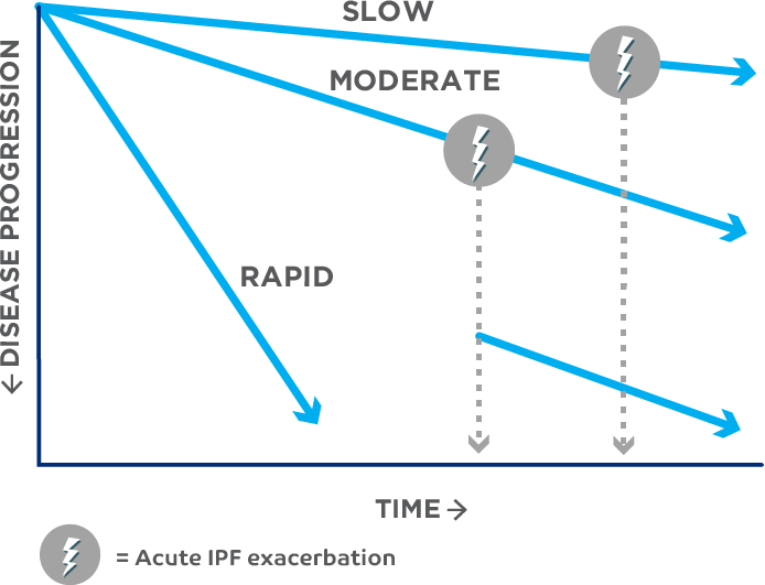 IPF progression can be slow, rapid, or accelerated by acute IPF exacerbation