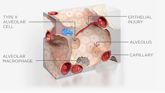 Mechanism of action epithelial injury